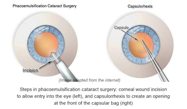 cataract-step1