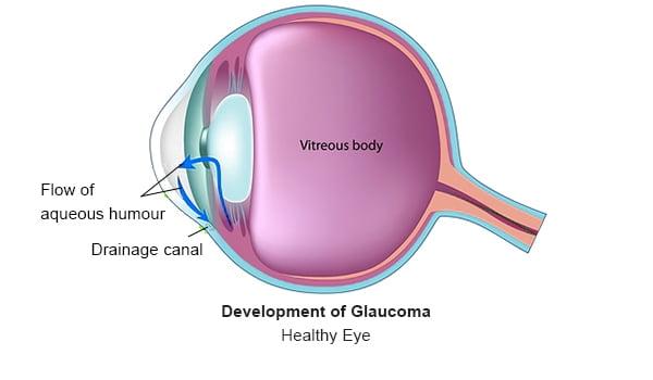 Glaucoma - 1