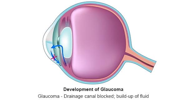 Glaucoma - 2