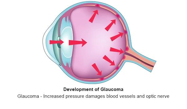 Glaucoma - 3