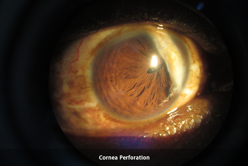 Trauma - Cornea Perforation